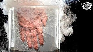 program de detectare a viermilor galavita condiloamelor