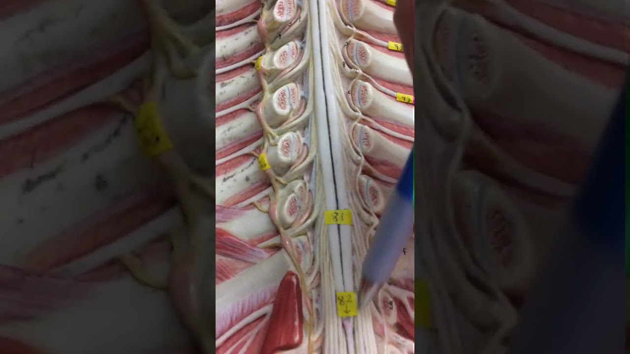 Anatomy lab practical: spinal cord - YouTube