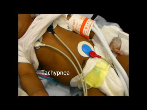 Infant Respiratory Distress Signs