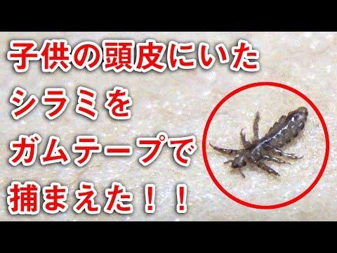子供の頭皮にいたアタマジラミをガムテープで捕まえた!! |  Discovery of louse