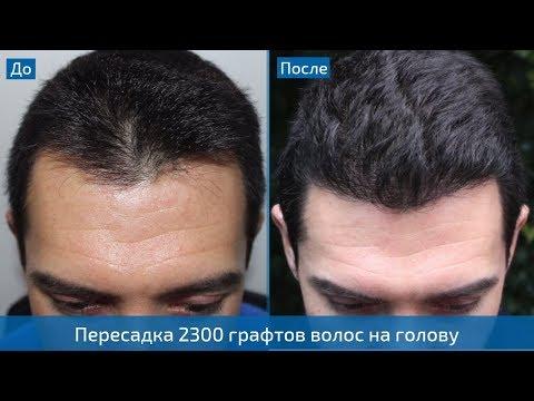 Результат пересадки волос в Турции спустя 10 месяцев - 2300 графтов на переднюю линию и макушку