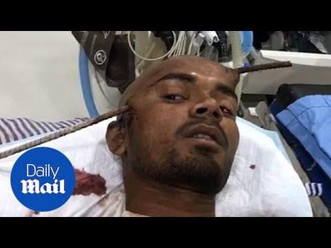 Aaron Zytle - Construction Worker Survives Iron Rod Through Head