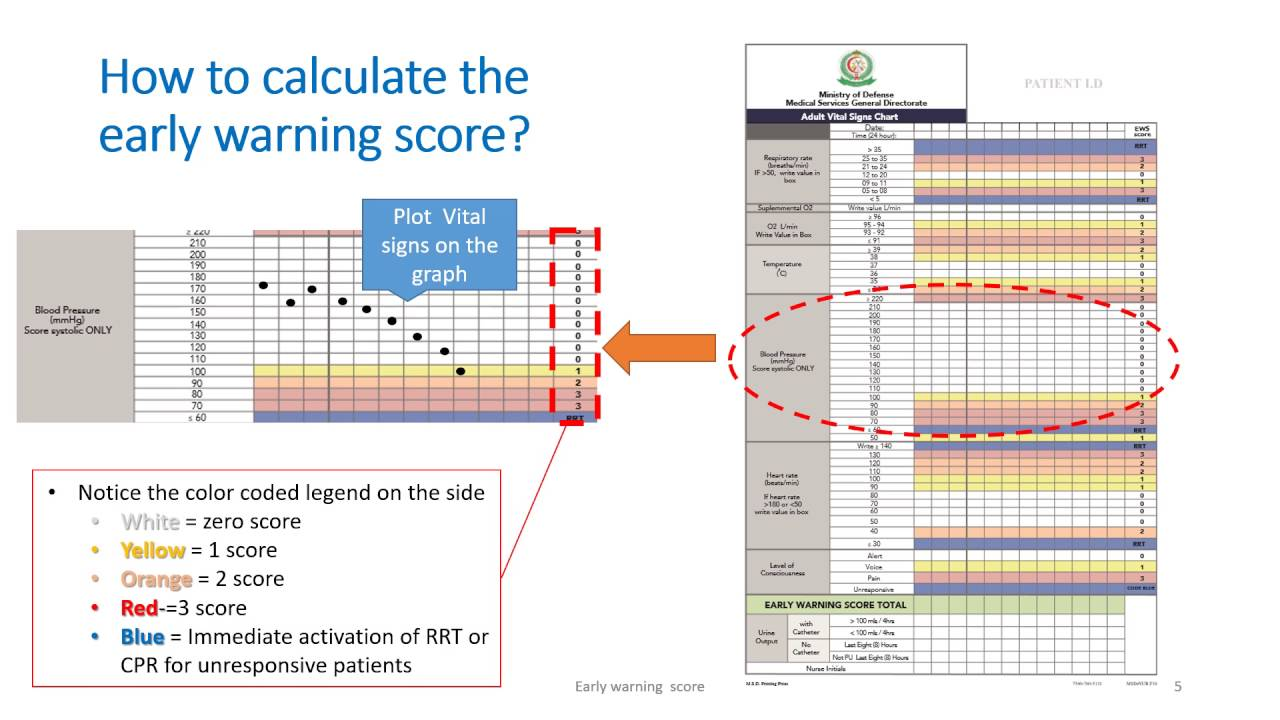 Reflection on early warning score