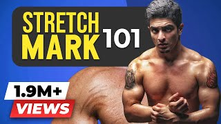 GOODBYE FOREVER, Stretch Mark Trouble | Stretch Marks science, causes & treatment | BeerBiceps