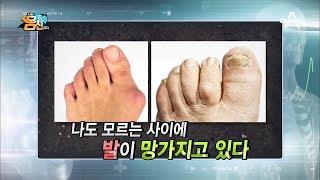 [예능] 나는 몸신이다 170회_180403 - 하이힐, 키높이 구두의 경고! 발이 늙는다