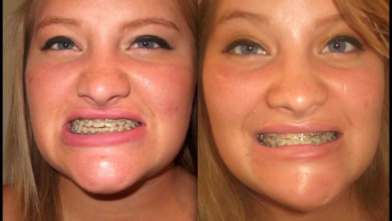 Jaw Surgery Before and After Photos - YouTube