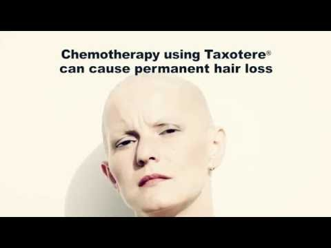 Taxotere Lawsuit – Chemotherapy Drug Causes Permanent Hair Loss