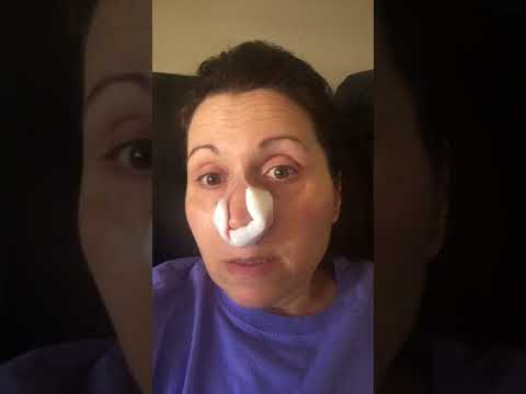 After surgery. Nasal polyps