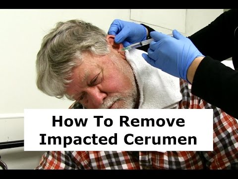 Removing Impacted Cerumen from a Patient's Ear