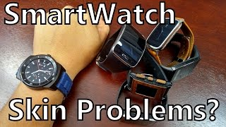 Are Smartwatch Heart Rate Monitors Causing Skin Irritation?
