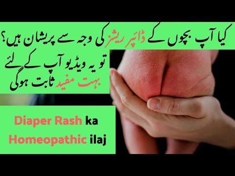 homeopathic-medicine-for-diaper-rash-|-irritant-diaper-dermatitis-|-diaper-rashes-ka-ilaj