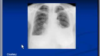 Chest x-ray -- Pleural effusion, Pneumonia
