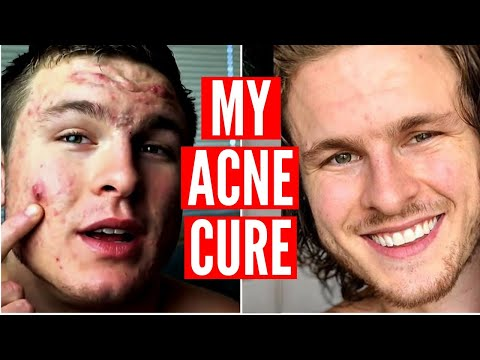 How I Cured My Acne | Ft. Brian Turner