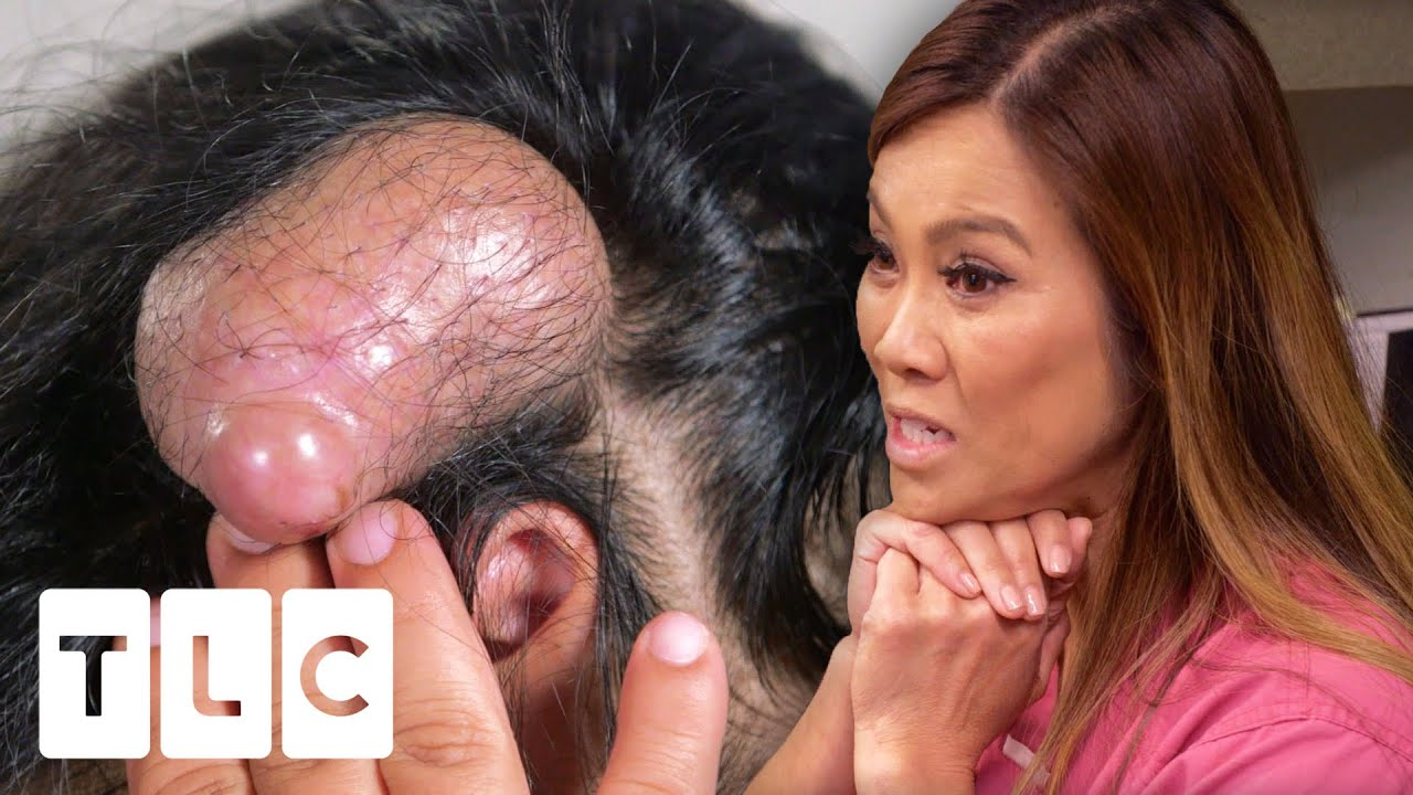 Download Dr Lee May Have Extracted The Biggest Pillar Cyst She Has Ever Seen!   Dr. Pimple Popper Pop Ups
