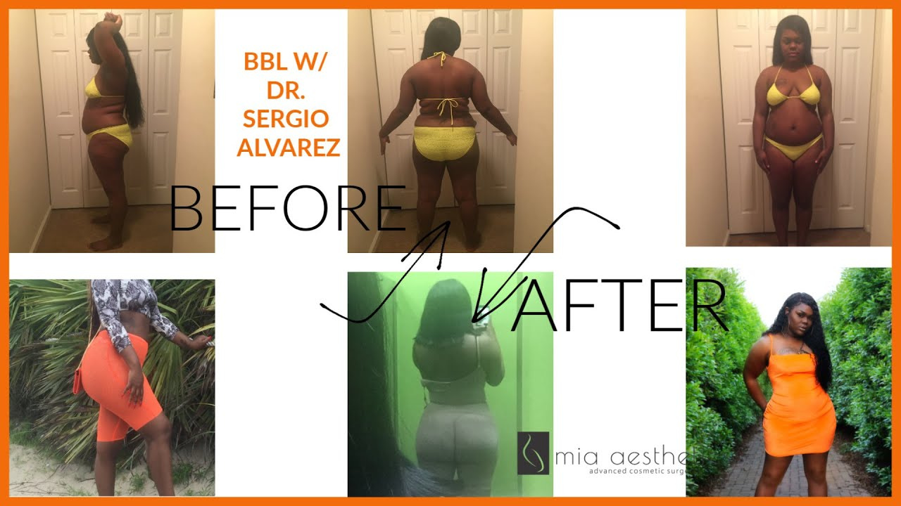 MY BBL STORY W/ DR ALVAREZ @ MIA AESTHETICS(VERY INFORMATIVE )+ BEFORE &  AFTER PICTURES ! PT 1