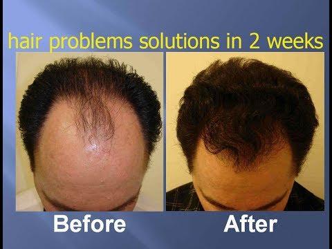 hair-treatment-with-amla-powder