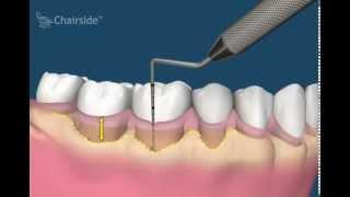 Уменьшение глубины каналов (Обучающее видео для стоматологов)(, 2015-08-13T11:36:42.000Z)