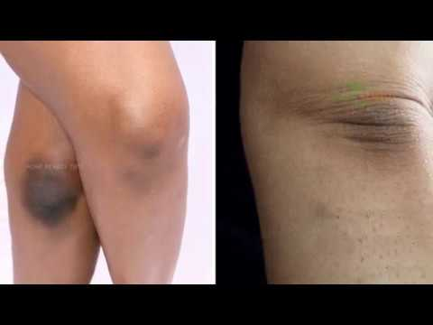 Natural Tricks to Remove Dark Skin Knees and Elbows - Home Remedy Tips