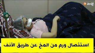 استئصال ورم من المخ عن طريق الأنف لأول مرة بمستشفيات الشرق الجزائري في قسنطينة