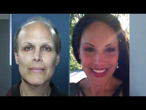Dr. Lazaro Cardenas - Patient Testimonial