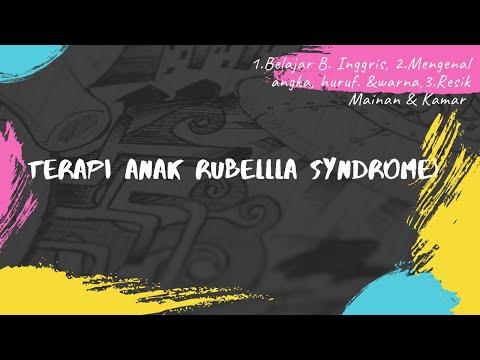terapi-anak-berkebutuhan-khusus,-rubella-syndrom-3