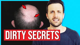 Top 3 Dirty Secrets of The Hair Transplant Industry
