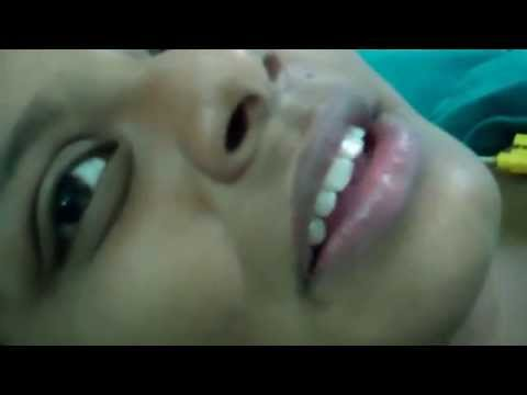 Pretty Maldivian Girl Undergo Laser Surgery Nose:Dr.K.O.Paulose FRCS
