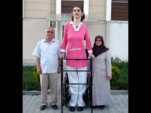 The tallest girl on the planet. Video.