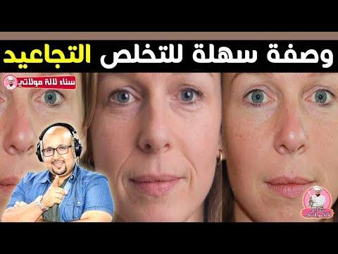 bc4a724ca  وداعا للتجاعيد وصفة سهلة للتخلص التجاعيد و النتيجة مضمونة من الدكتور عماد  ميزاب imad mizab - YouTube