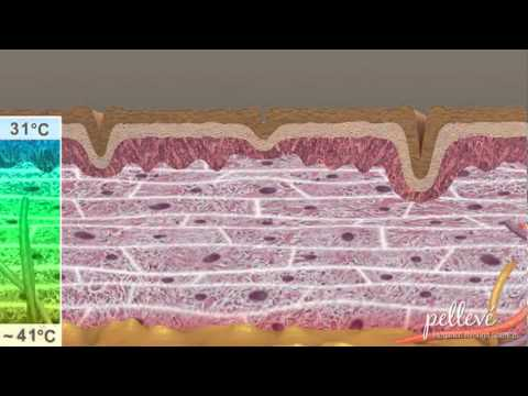 Wrinkle Reduction Animation Model Radio Frequency.flv