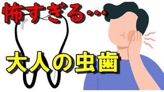 大人の虫歯に注意!歯を失う原因は!?歯周病ではなかった…虫歯予防の基本とは?【面白雑学】