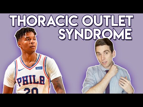 Thoracic Outlet Syndrome explained