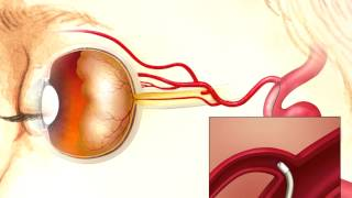 Intra-Arterial Chemotherapy for Intraocular Retinoblastoma