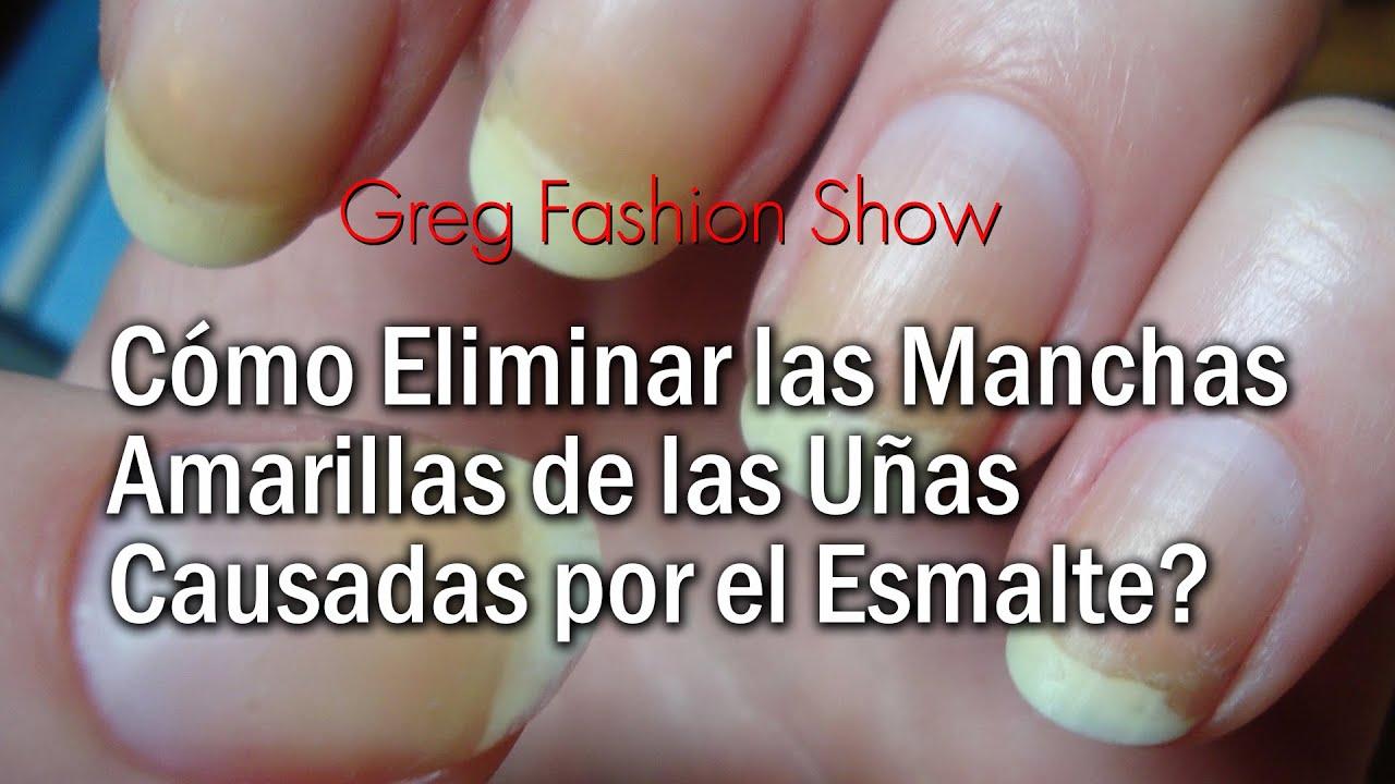 como eliminar manchas blancas de las uñas