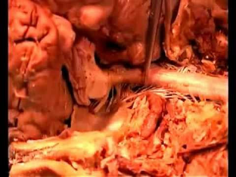 Anatomical Dissection Of Cranial Contents Of Brain Youtube