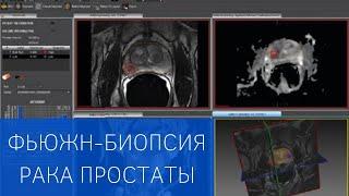 Фьюжн-биопсия – новый высокоточный метод диагностики рака предстательной железы
