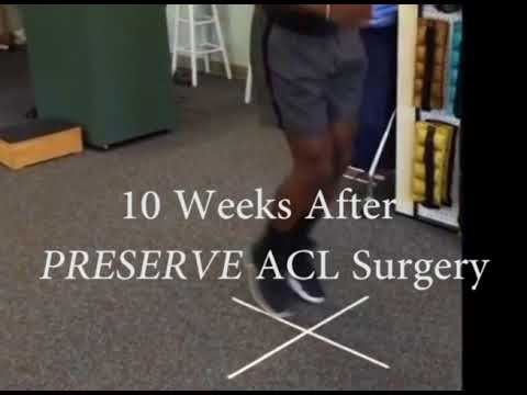 10 Weeks After PRESERVE ACL Surgery
