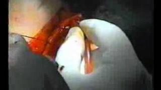 Duodeno-Pancreatectomie Cephalique -Dr Layachi-