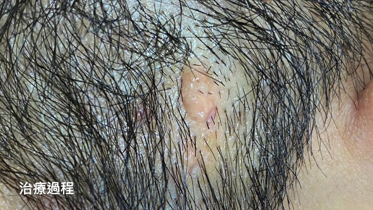 頭皮腫瘤凸痣切除 美麗新城診所莊禮謙醫師 skin tumor, nevus excision, Dr George
