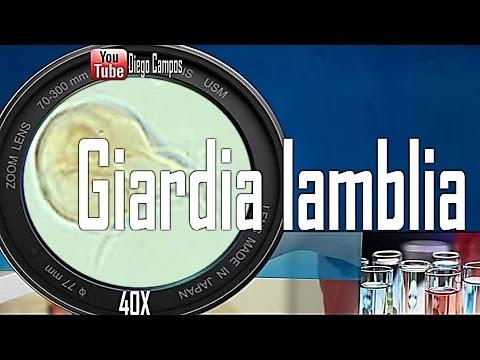 Giardia lamblia (Giardiasis)-Trofozoitos y quistes