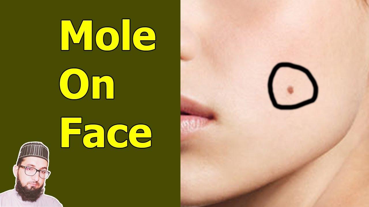 Mole On Face Astrology In Urdu-Jisam K In Hissoun Per Til Ka Kya Matlab  Hota Hai-Til On Face
