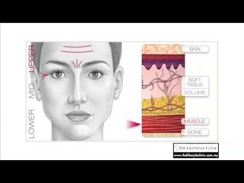 V Shape Face Treatments | The LifeStyle Clinic