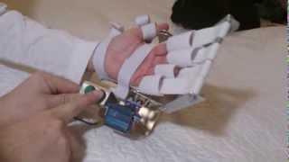 БУТОН - тренажер для пальцев руки(Восстановление после инсульта парализованной руки (пальцев рук). Восстановление после инсульта подвижнос..., 2014-01-17T08:57:45.000Z)