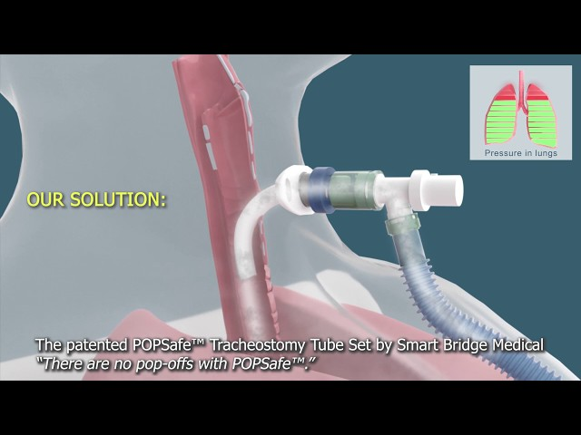 The patented POPSafe™ Tracheostomy Tube Set by Smart Bridge Medical - 3D Medical Animation