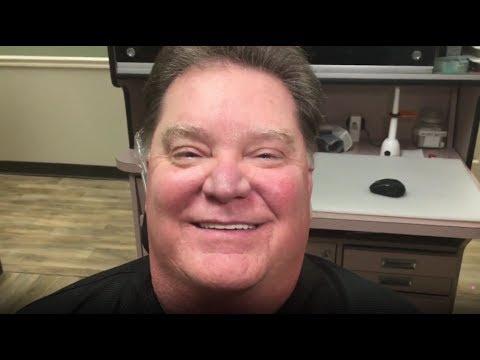 Snap-on Smile Uptown Houston   Cosmetic Dentist   Terri