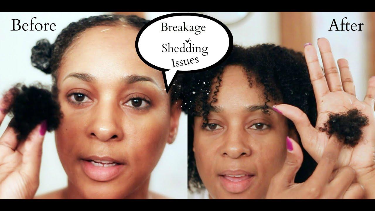 Severe Breakage Natural Hair