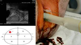 Transperineal Prostate Biopsy In Local Anesthesia