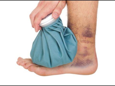 Как снять опухоль с ноги после ушиба в домашних условиях