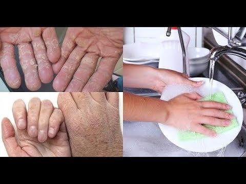 Cách làm mềm da tay chân bị khô nứt nẻ cực hiệu quả