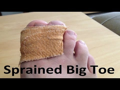 Turf Toe & Sprained Big Toe [BEST Home Treatment 2020]